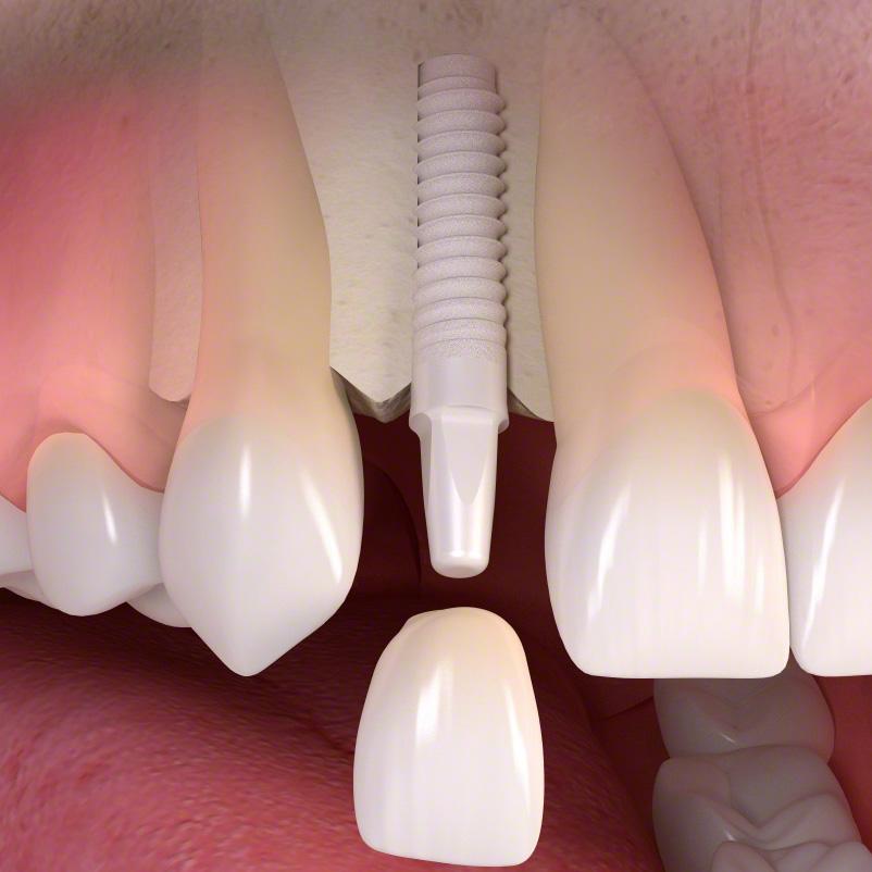 Zahnimplantate Krefeld Viersen